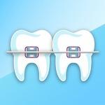 ทันตกรรมจัดฟัน - คลินิกทันตกรรมเด็นทัลวิลลา