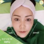 HIFU เชียงราย - คลินิกศัลยกรรม เชียงราย Chic Clinic
