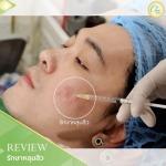 รักษาหลุมสิว เชียงราย - คลินิกศัลยกรรม เชียงราย Chic Clinic