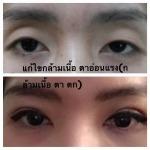 แก้ไขกล้ามเนื้อตาอ่อนแรง - คลินิกศัลยกรรมตกแต่งเสริมสวย รังสิต